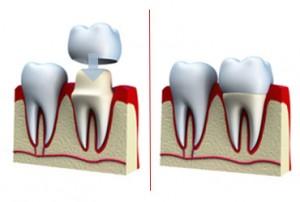 tandkroner ved tandlæger i odense karen juul